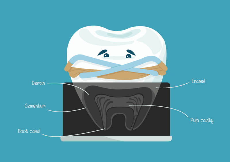 What to Expect with your First Root Canal