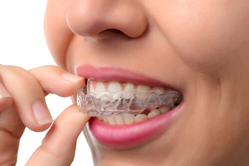 Is Invisalign Really Invisible?