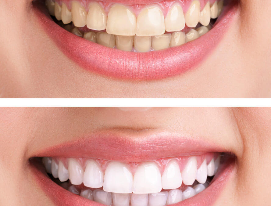 5 Teeth-Whitening Myths Busted!